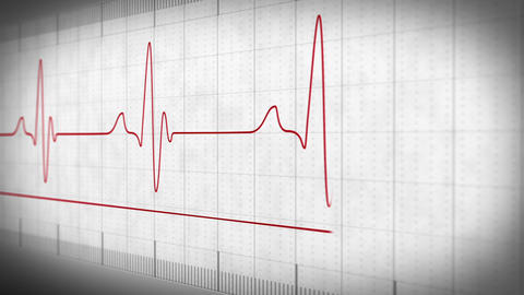 EKG electrocardiogram pulse real waveform Animation