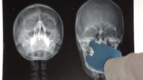 Medical Doctor Pointing To Head X-ray stock footage