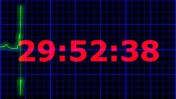 EKG heartbeat Countdown 30 seconds Footage