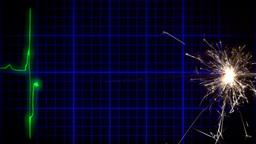 EKG heartbeat fuse spark Footage