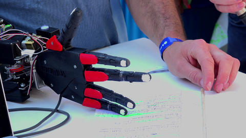 Electronic Prosthetic Arm stock footage