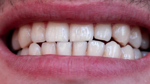 White teeth Stock Video Footage