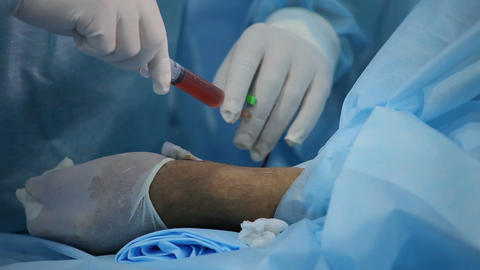 Surgeon inserts into the vein medicine for a resorption of thrombus formation Footage
