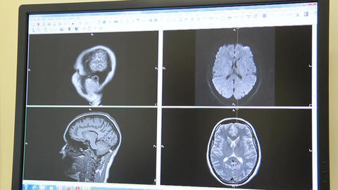 CT And MRI - The Doctor Sitting In Front Of The Monitor Of Scanner (dolly) stock footage