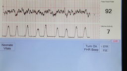 obtaining an electrocardiogram Footage