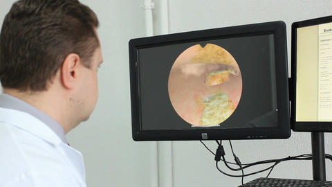 Virtual hysteroscopy simulator of the surgery (in work) Footage