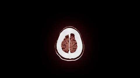 Human Brain MRI Scan stock footage