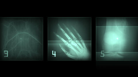 4k Human finger bone scan,tech medical X-ray data,medical research body health Live Action