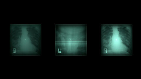 X-ray film... Stock Video Footage