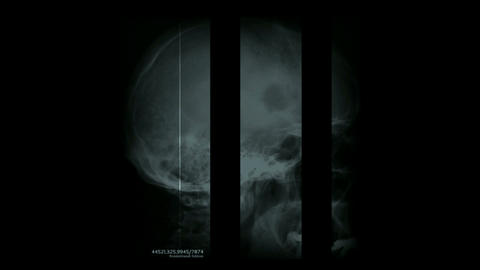 human head zoom in brain with neurones x-ray,mortuary,death,despair,material,texture,particle,Design Animation