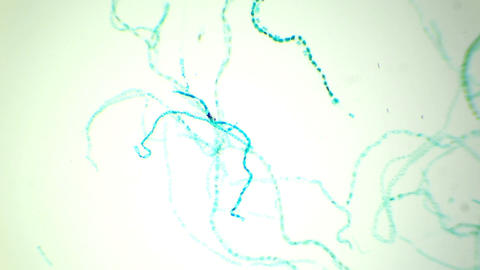 Conjugation of Spirogyra under the microscope (sex ビデオ