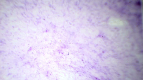 Loose fibrous connective tissue under the microsco Footage