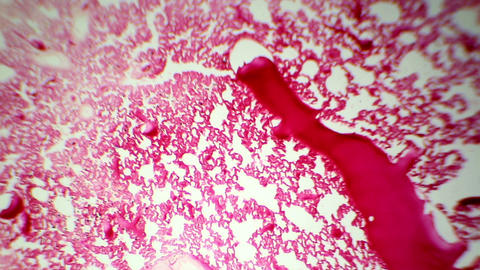 Slice blood vessels in the rat under the microscop Footage