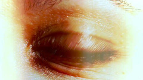 Caucasian Women Eye with Contact Lens 03 Stock Video Footage