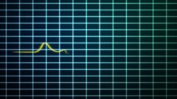 EKG scanner with red and yellow stroke waves Stock Video Footage