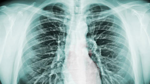 Chest X-ray And Radiation. (loop Ready File) stock footage