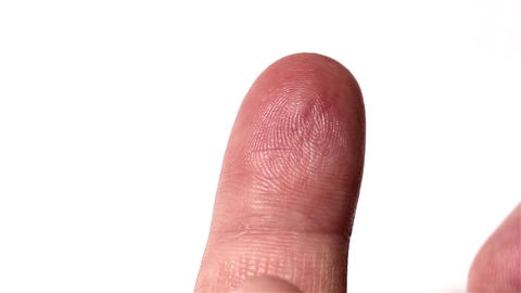 Preparing Finger for Blood Glucose Test 02 bleeding stylized Stock Video Footage