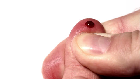 Preparing Finger for Blood Glucose Test 02 bleeding stylized Stock Video Footage