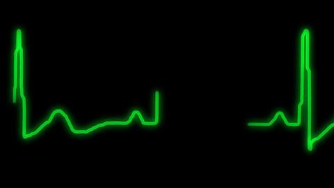 EKG Collection 0