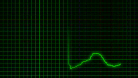 EKG Animation with Background Stock Video Footage