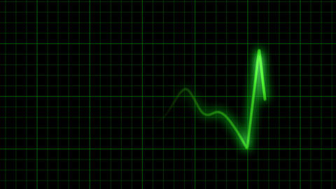 EKG Animation with Background Animation