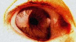 Eye nightmare bloody grainy Footage