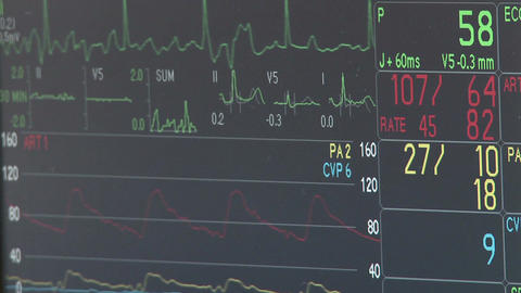 Monitor tracks vital signs during surgery Live Action