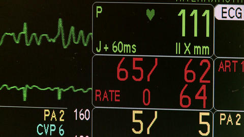 Vital signs monitor during surgery Live Action