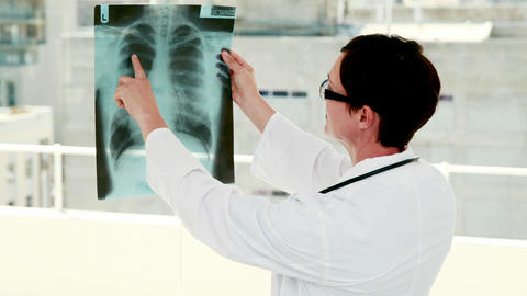 Doctor analyzing xray results Footage