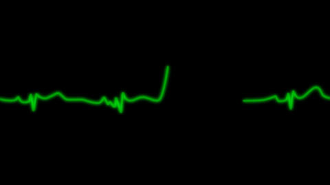 EKG Animation with Alpha Channel Stock Video Footage