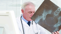 Serious doctor examining a pregnant woman x-ray Footage