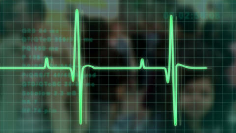 electrocardiogram pulse trace Animation