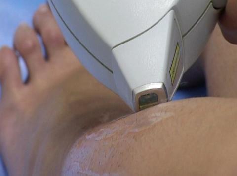 laser epilation Live Action