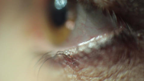 Super macro eyeball Footage