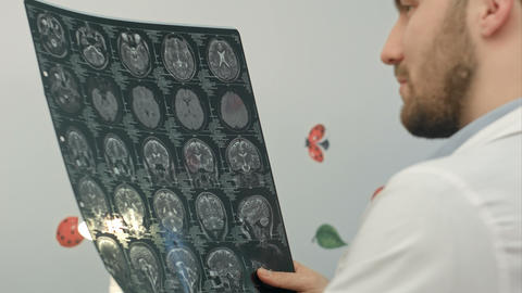 Senior man doctor examines MRI image in hospital Footage