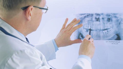 Doctor Studying An Xray In His Office stock footage